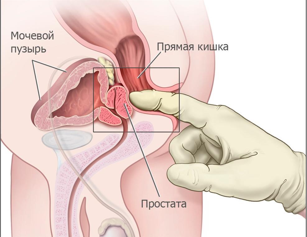 Повышение мышечного тонуса простаты