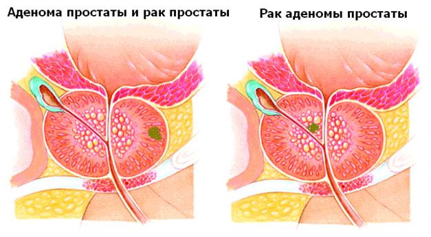 Анатомические отличия