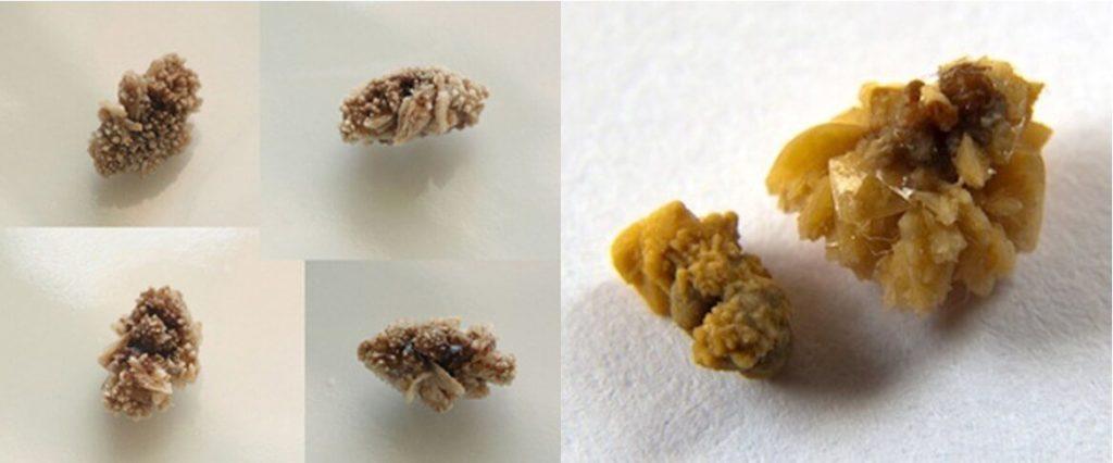 Камни предстательной железы