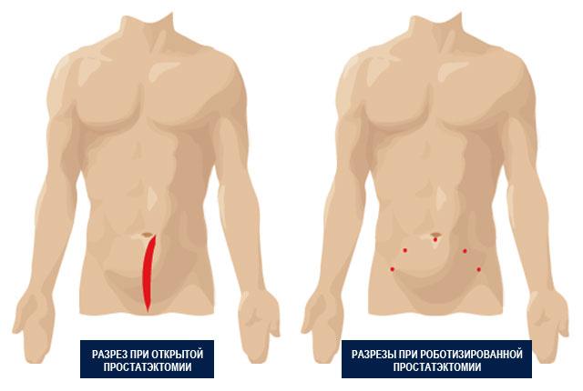 Разрез при полостной операции