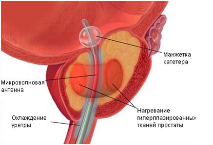 Трансуретральная терапия