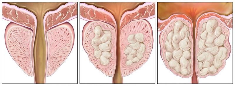 Три стадии аденомы