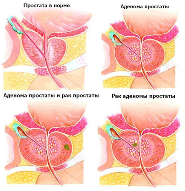 Отличия аденомы от аденокарциномы