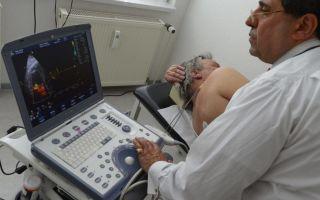 Методы диагностики и лечения гиперэхогенных включений в предстательной железе