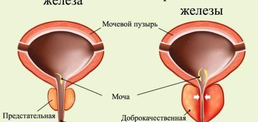 Возникновение аденома простаты у мужчин — симптомы и методы лечения