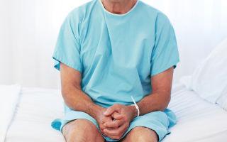 Способы лечения абактериального простатита
