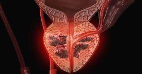 Можно ли вылечить аденокарциному предстательной железы?