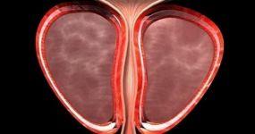 Симптомы и методы лечения абсцесса предстательной железы