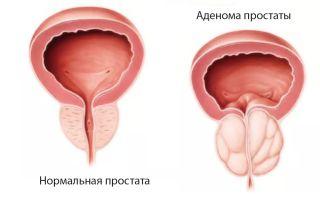 Какие размеры аденомы предстательной железы?