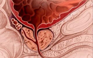Что такое диффузная гиперплазия предстательной железы?