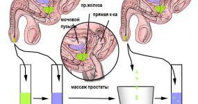 Как собрать анализ секрета предстательной железы и что он показывает?