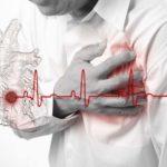 Недавно перенесенный инфаркт миокарда