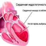 Недостаточная работа сердца