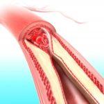 Атеросклероз в тяжелом проявлении