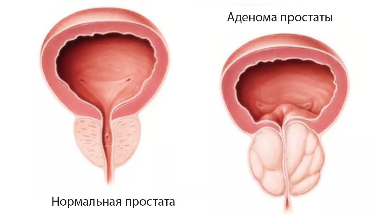 Диффузные изменения предстательной железы  норма или патология